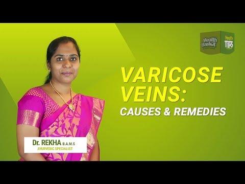 Fitness pentru persoanele cu vene varicoase