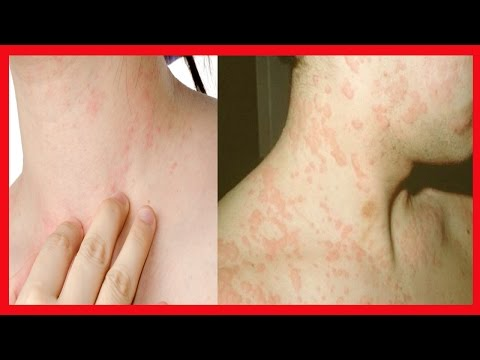 Do que facilitar o eczema a mãos