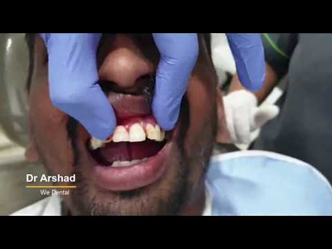 A patient undergoes Upper teeth extraction at the Dental specialist in coimbatore