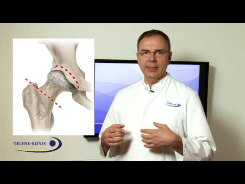 Symptome von zervikaler degenerativer Bandscheibenerkrankung und Schmerzen im Ohr