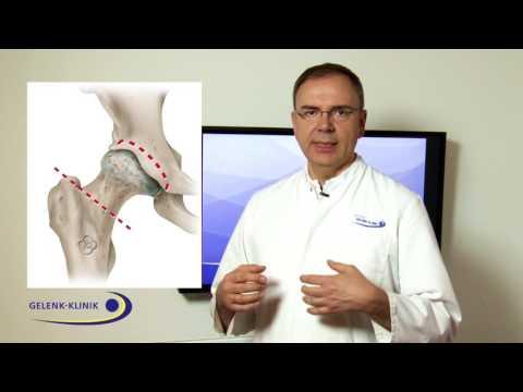 Hüftprothesen aesculap
