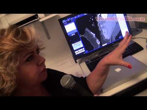 Angiotomografia coronária, o que é? Vídeo mostra o exame