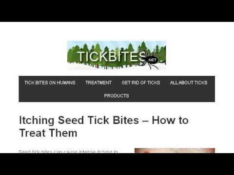 Video How-To Treat Tick Bites On Dogs