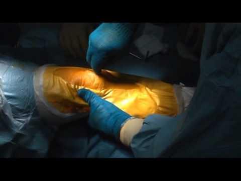 I metodi tradizionali di mal di schiena