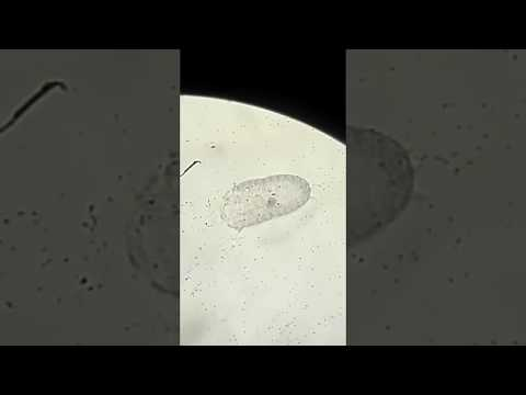 Ursofalk ของ Giardia