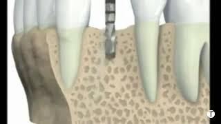 Video زرع الأسنان