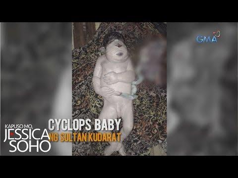 Kapuso Mo, Jessica Soho: Cyclops baby