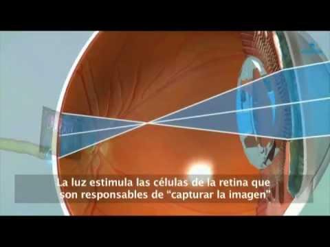 Corecția vederii cu laser pentru vascularizarea corneei