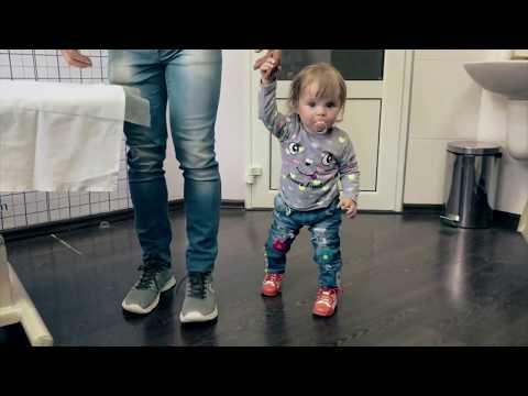 Дисплазия тазобедренных суставов у детей. Лечение по методу Игнатьева.Последствия аппарата и шины.