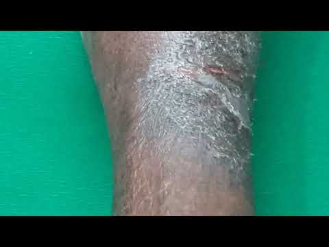 Eczema depois de goma-laca