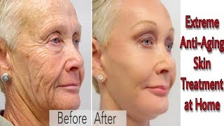 LOOK 10 YEARS YOUNGER   SKIN WHITENING & ANTI-AGING TREATMENT AT HOME   ANTI-AGING RICE FACE MASK