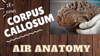 Corpus callosum | Air Anatomy