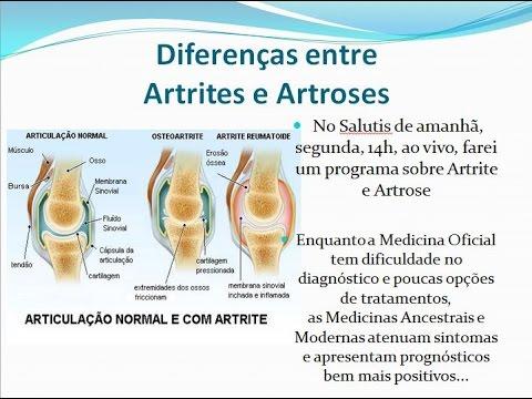 Durere a articulației stângi a degetului mare