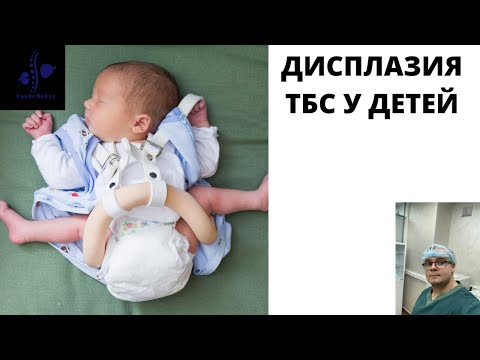 Дисплазия тазобедренного сустава у детей!!! Детский ортопед и здоровье суставов
