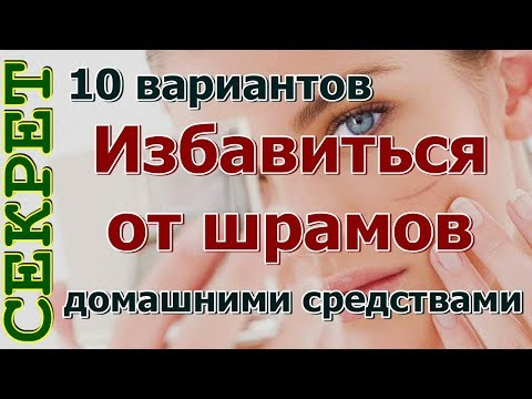 Как избавиться от шрамов на лице и теле в домашних условиях