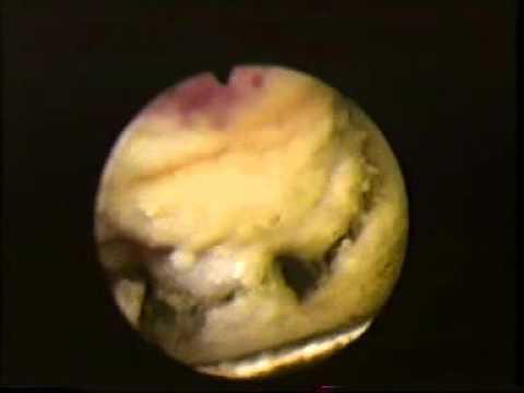 Лист брусники в лечении простатита