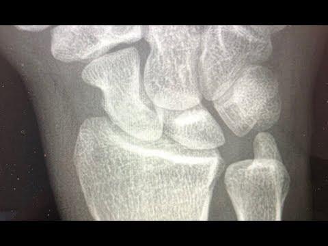 Cele mai eficiente tratamente pentru artroză