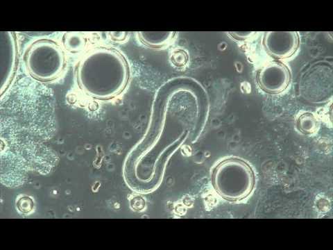 Die Giardia intestinalis verhält sich