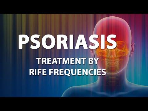 Comme on peut guérir le psoriasis