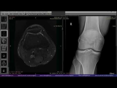 Artroza simptomelor tratamentului articulației genunchiului poate fi