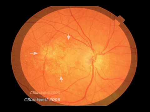 Die Abtragung des Pigmentfleckes vom Auge
