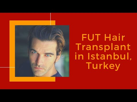 Best-FUT-Hair-Transplant-in-Istanbul-Turkey