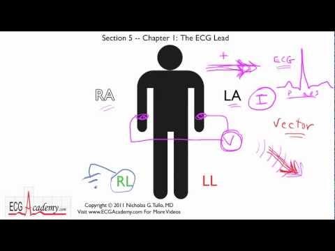 Interpretacja EKG - Podstawy Odprowadzeń, 5-1