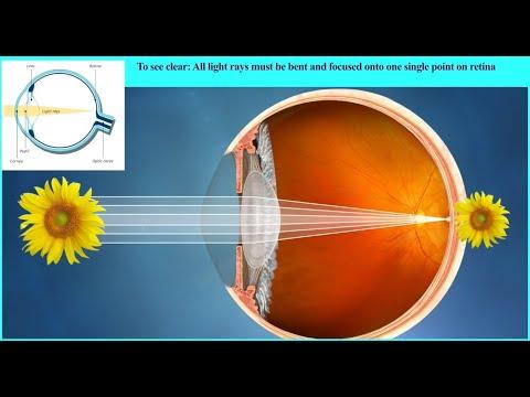 Szemműtét szaruhártya myopia