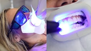 Is professional teeth whitening really worth it? Celebrity dentist spills all | Glam Lab