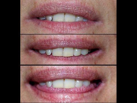 Fungiform papillae tongue treatment