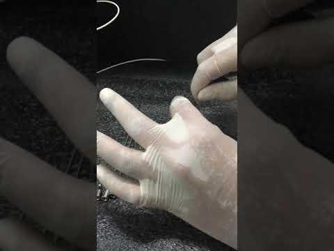 Ízületi gyulladás ureaplasmosisból