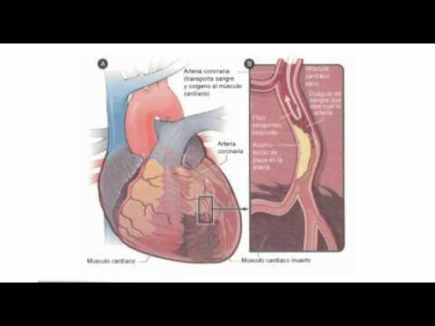 Vasoconstrictor en la hipertensión portal