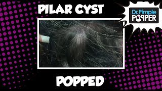 Popping a GREAT Pilar Cyst