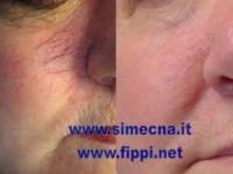 Prurito a dermatite varicosa