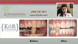 Teeth Bleaching Escondido