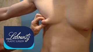 GYNECOMASTIA Gland Removal Surgery on MALE from Michigan by Dr. Lebowitz