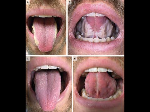 gyógyszerek stomatitis és helminthiasis kezelésére