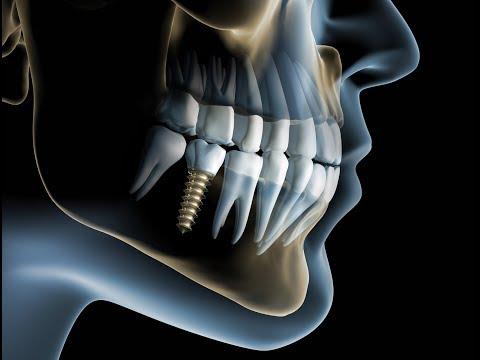 Osteochondrose zurück Ischias