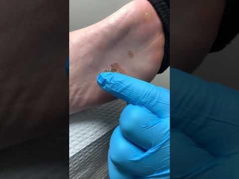 Vörös száraz folt a láb bőrén