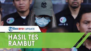 Hasil Tes Rambut Lucinta Luna Keluar, Pihak Kepolisian: Positif Amfetamin