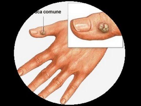 Le unghie su mani come trattare il giro giallo