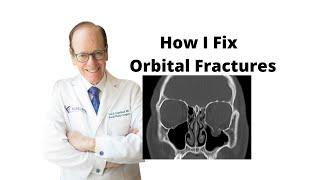 Orbital Fractures 101 | Oculoplastic Surgeon Explains Orbital Fracture Surgery