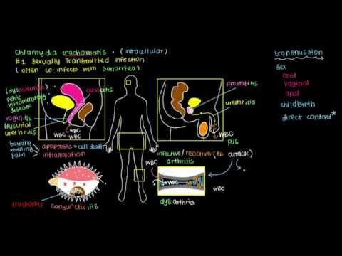 Iperplasia prostatica benigna Lopatkin