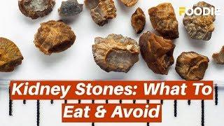 Kidney Stones: What To Eat & Avoid - Diet Tips to Prevent Kidney Stones