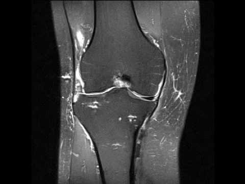 Arthrose des Kiefergelenks Arthritis