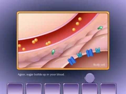 Wie Insulinspritze in Bauch Video stechen