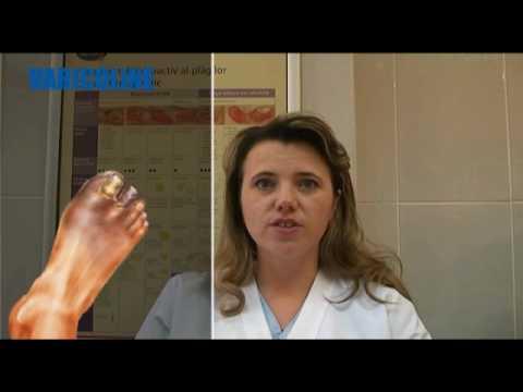 Scuti de dureri la nivelul picioarelor in diabet