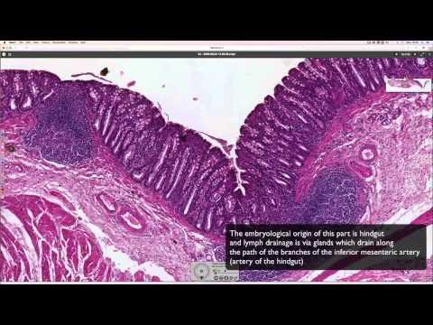Diagnose von Prostata-Bluttest
