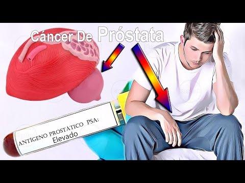 I sintomi del cancro alla prostata
