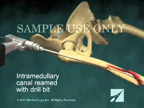 Интрамедуллярный остеосинтез перелома правой бедренной кости